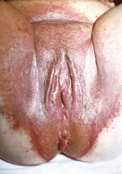 грибок в паху и на гениталиях